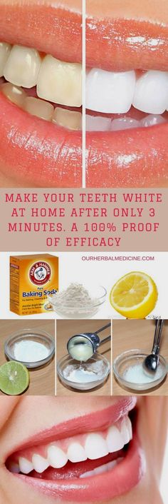 Best Teeth Whitening Treatment for 2019 - Saude Bucal Warts On Hands, Warts On Face, Natural Teeth Whitening, Whitening Kit, Teeth Whiting At Home, What Causes Warts, Get Rid Of Warts, Remove Warts, Oil For Hair Loss