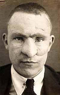 Facial resconstruction