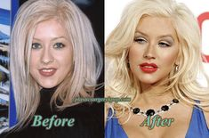 christina aguilera plastic surgery - Google Search
