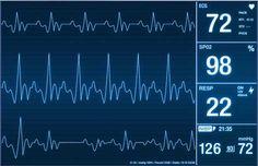 KISA BOYLULARDA KALP KRİZİ RİSKİ DAHA FAZLA  http://www.medimagazin.com.tr/ana-sayfa/guncel/tr-kisa-boylularda-kalp-krizi-riski-daha-fazla-1-11-65316.html