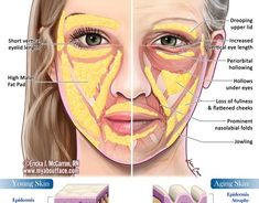 Kevin Cease - Aging skin comparison section of information related to. Facial Fillers, Botox Fillers, Dermal Fillers, Cosmetic Treatments, Skin Treatments, Relleno Facial, Facial Anatomy, Skin Anatomy, Facial Aesthetics