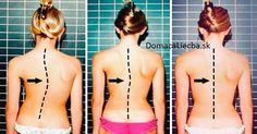 7 ľahkých cvikov na skoliózu a narovnanie pokrivenej chrbtice