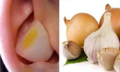 dolor de oidos remedios caseros
