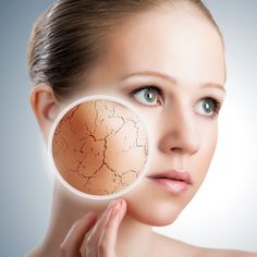Dry Skin Causes and Best Home Remedies
