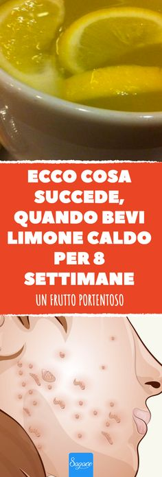 #salute #benessere #limone #limoni #succo #acqua #pelle #dimagrire #umore #mobilità #linfa #purificare #influenza #difese #immunitarie Natural Cures, Natural Health, Detox, Antipasto, Natural Medicine, Health And Safety, Healthy Lifestyle, The Cure, Health Fitness