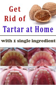 Get rid of the Tartar with a single Ingredient at Home #teeth #tartar #health #home #beauty #diy