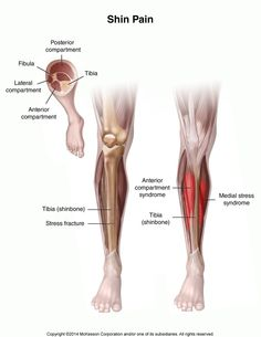 Shin splints refers to pain along the shin bone and is caused by the muscles, tendons and bone tissue become overworked by the increased or a different type of activity. It will often affect runners, dancers and military recruits due to the continual impact particularly on hard surfaces or uneven terrain but can also be caused by weakness in the stabilizing muscles of the hips and core or if you have flat feet or high arches.