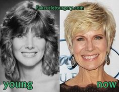 Debby Boone Plastic Surgery Debby Boone, Facelift Before And After, Don Johnson, Operation, Alter Ego, Plastic Surgery, Superstar, Rock, Stars