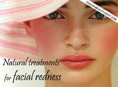 Natural treatment for facial redness : ♥ IndianBeautySpot.Com ♥