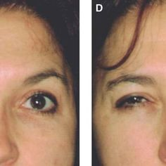 (A) Patient before Botox injection of the forehead, glabella, and... | Download Scientific Diagram Muscle Contraction, Botox Injections, Body Organs, Research Projects, Skin Care Regimen, Fig, Conditioner, Diagram, Board