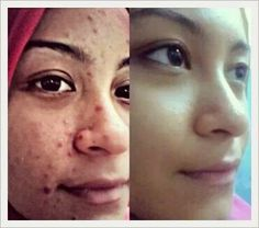 Apple+grape stemcell did ths! Say hi to beautiful skin using ths great product.. available in sublingual powder and spray(contain 3 stemcell including argan stemcell) for only MYR135(retail price MYR250 each pack)..worldwide shipping available.. contact through whatsapp  +60163463516
