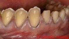 Подготвени зъби за порцеланови фасети и корони Dental Design, Dental Art, Dental Hygiene, Dental Anatomy, Dental Technician, Dentistry, Teeth, Medical, Smile