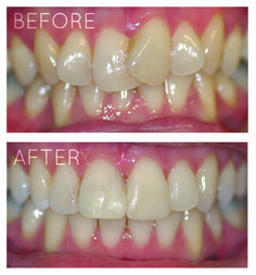 Confident Smiles- Dr. Anurag Singh, a cosmetic #dentist in SCODE #Dental #Clinic, in nwe delhi can help you achieve a beautiful Confident Smile. visit our website for more informatio. www.dental-delhi.com