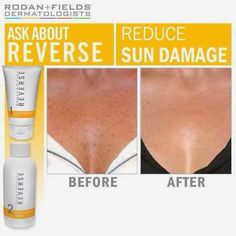 Don't wait! Get rid of those brown spots today or get a 60 day empty bottle…