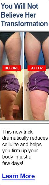 THERMOCELL REVIEWS - CELLULITE TREATMENT
