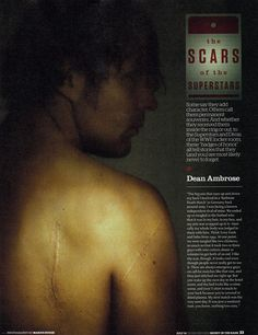 Dean Ambrose - the Scars of the Superstars - WWE Magazine