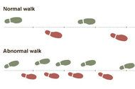 Footprints to Cognitive Decline and Alzheimer's Are Seen in Gait  By PAM BELLUCK  Published: July 16, 2012  FACEBOOK  TWITTER  GOOGLE+  E-MAIL  SHARE  PRINT  REPRINTS    The way people walk appears to speak volumes about the way they think, so much so that changes in an older person's gait appear to be an early indicator of cognitive impairment, including Alzheimer's disease.