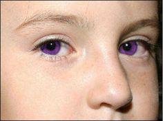 Alexandria Genesis is a genetic disorder that causes peoples eyes to be purple.