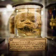 """""""Anatomical specimen from Musée Dupuytren in Paris, France. Photo by Cyril Jagot"""" Creepy, Scary, Human Oddities, Human Body Parts, Evil Clowns, Vintage Medical, Circus Theme, Medical History, Through The Looking Glass"""