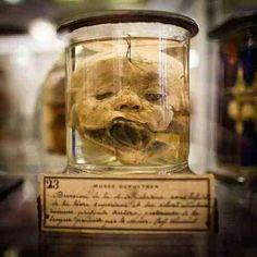 Anatomical specimen from Musée Dupuytren in Paris, France. Photo by Cyril Jagot pic.twitter.com/OiXvV59pTJ