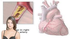 Heart Bypass Surgery Recovery