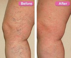 Best Ointment For Eczema. Itchy skin and eczema medication. On the list of various chronic skin disorders, eczema is among the most frequent. Varicose Vein Remedy, Varicose Veins Treatment, Toenail Fungus Treatment, Natural Treatments, Nail Treatment, Natural Remedies, Skin Treatments, Skin Tips, Women Health