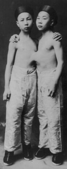Liou Seng-Sen and Liou Tang-Sen The 'Korean'conjoined twins in 1903, aged around 7 years old.