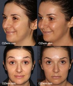 Botox for forehead lines and crow's feet