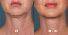 Double chin is a problem both full and thin women. Because the weight gain is only one of the reasons. Among the most common culprits of this trouble,. Face Care, Skin Care, Muscles Of The Face, How To Stop Coughing, Double Chin, Sagging Skin, Beauty Recipe, Health Coach, Health And Beauty