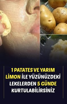 Homemade Skin Care, Health And Beauty, Healthy Recipes, Face, Tips, Cute Baby Cats, Cute Babies, Potatoes, Vegetables