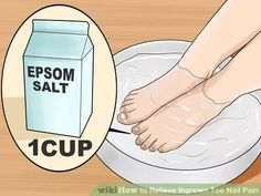 Image titled Relieve Ingrown Toe Nail Pain Step 7