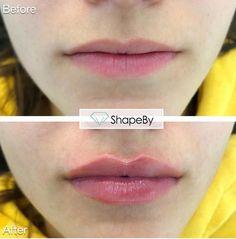 Face Fillers, Botox Fillers, Juviderm Lips, Lip Job, Facial Procedure, Aesthetic Dermatology, Facial Aesthetics, Colourpop Eyeshadow, Lip Augmentation