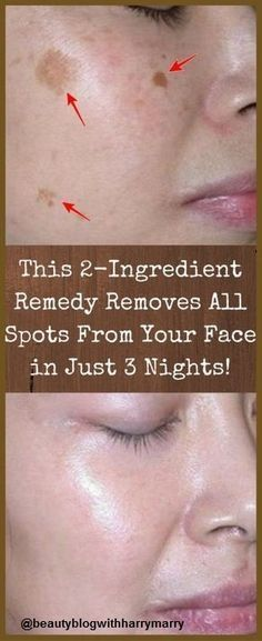 Beauty & Fitness with Harry Marry: Remove All Spots From Face In Just 3 Nights With T...