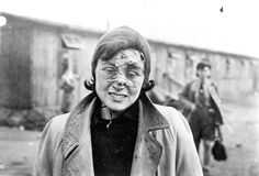 Bergen Belsen, Germany, A female survivor whose face was injured, April 1945. - Yad Vashem Photo Archive
