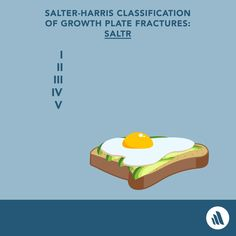 Just remember SALTR (no E) for the Salter-Harris classification of growth plate fractures. Med Student, Med School, Study Tips, Students, Plate, Medical, Learning, Baby, Projects To Try