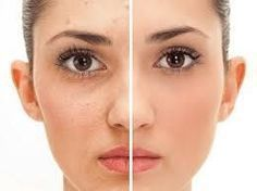 Break outs develop on the face, chest and back which can cause acne scarring if left untreated. The best acne scar treatments are available at health + aesthetics. Pele Natural, Natural Skin, Skin Care Remedies, Acne Remedies, Anti Blemish, Back Acne Treatment, Acne Causes, Rides Front, Skin Tag