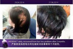 Ageless Beauty, Hair Loss, How To Stay Healthy, Bottle, Business, Board, Stem Cells, Youth, Losing Hair
