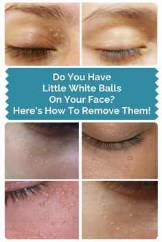 Do You Have Little White Balls On Your Face? Here's How To Remove Them!