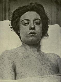 "Here is an old photograph of an unidentified smallpox sufferer that comes from my copy of the 1910 medical textbook, ""The Diagnosis of Smallpox"" by Thomas Frank Ricketts. Smallpox was a highly contagious disease that caused lesions to form on the body and often resulted in severe scarring, blindness, and, in most cases, death. The World Health Organization declared smallpox to be officially eradicated in 1979."
