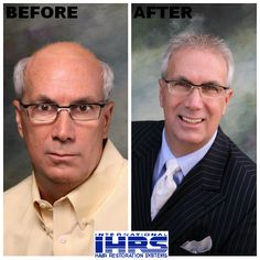 We are proud to offer SensiGraft Hair Replacement for men, the latest in state-of-the-art hair restoration and replacement solutions designed specifically to meet the needs of our clients! Visit http://hair4me.com/index.htm #IHRS #hairloss #hairreplacement #alopecia #malepatternbaldness