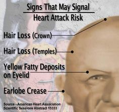 The Shocking Connection Between Hair In The Ears and Heart Attack