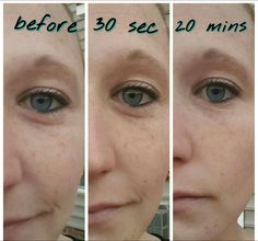 Nerium eye serum- Immediate results for eye bags and puffiness. www.katyjwebb.nerium.com