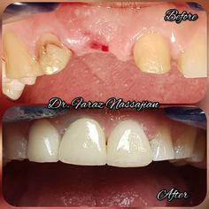 1 implantat mit 1 Zirkonkeramikkrone Dental, Korn, Minion, Breakfast, Local Dentist Office, Morning Coffee, Minions, Teeth, Dentist Clinic