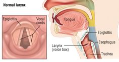 The vocal cords are two bands of elastic muscle tissue. They are located side by side in the voice box (larynx) just above the windpipe (trachea). Like other tissues in the body, vocal cords can be strained and damaged. Vocal cords are also subject t. Vocal Cord Dysfunction, Bicuspid Aortic Valve, Acid Reflux Home Remedies, Stomach Acid, Stomach Reflux, Harvard Health, Body Tissues, Singing Tips, Muscle Tissue