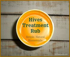 Use this hives treatment rub on hives, bug bites, burns, and any other skin irritation; it's a wonderful natural alternative to commercial cortisone creams.