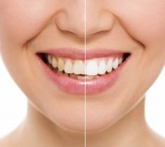 Negative Effects of Having Crooked Teeth!