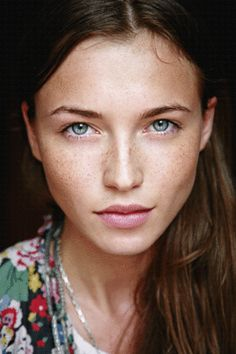 So many articles tell you how to cover or lighten freckles. I think freckles are beautiful!