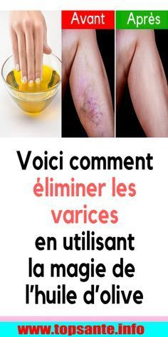 Here& how to eliminate varicose veins with this granny remedy - When the beautiful j . Cure Diabetes Naturally, Coconut Health Benefits, Diabetes Treatment, Varicose Veins, Anti Cellulite, Wellness, Fun To Be One, Skin Care Tips, Health And Beauty