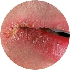 What is Angular Cheilitis - Are There Home Remedies?