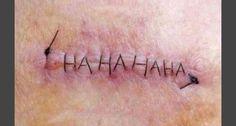 A nurse stitched up a friend...